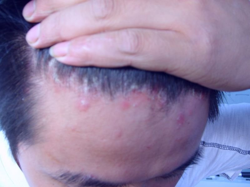 头部牛皮癣症状表现